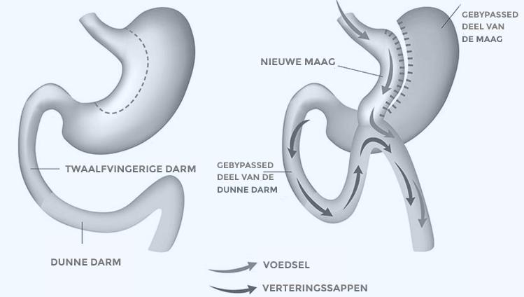 gastric bypass complicaties lange termijn